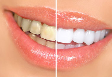 bright_smiles_tooth_whitening